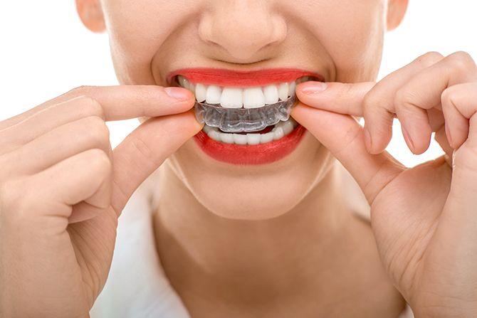 blanchiment dentaire dentiste