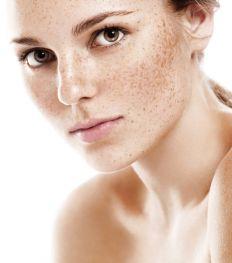 Comment prévenir et atténuer les taches pigmentaires?