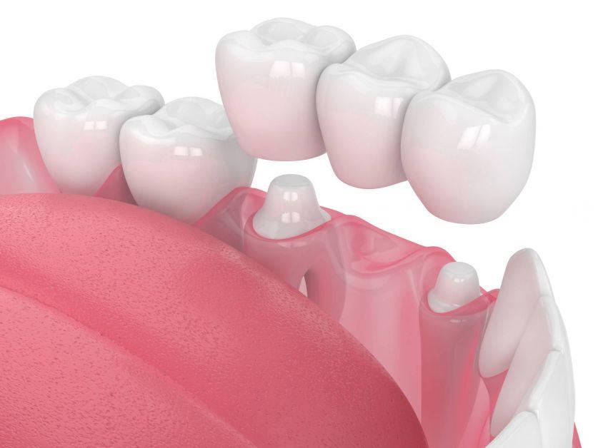 Comment bénéficier de soins dentaires sans se ruiner ? - 1