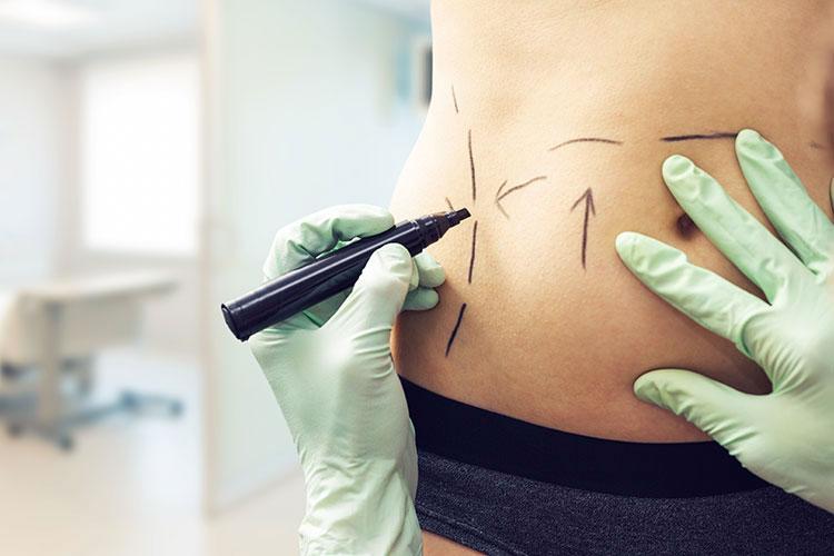 Corps d'une femme sculpté au marqueur en vue d'une opération de chirurgie esthétique.