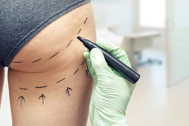 La chirurgie esthétique peut parfois virer au cauchemar. Image d'une fesse dessinée au marqueur.