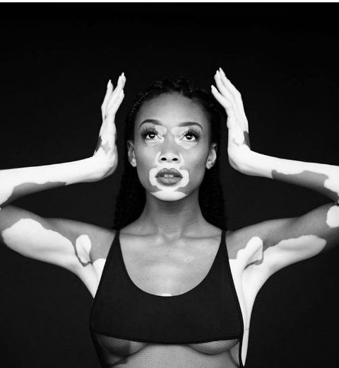 One to watch: Winnie Harlow