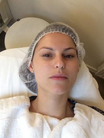 Weinig flatterende mid-treatment selfie