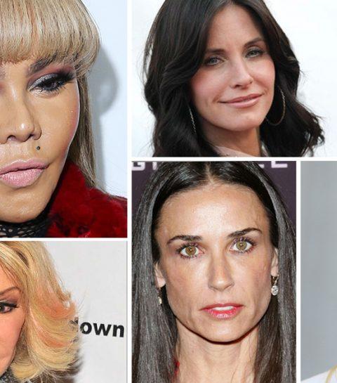 Deze 20 sterren ondergingen de meeste cosmetische ingrepen