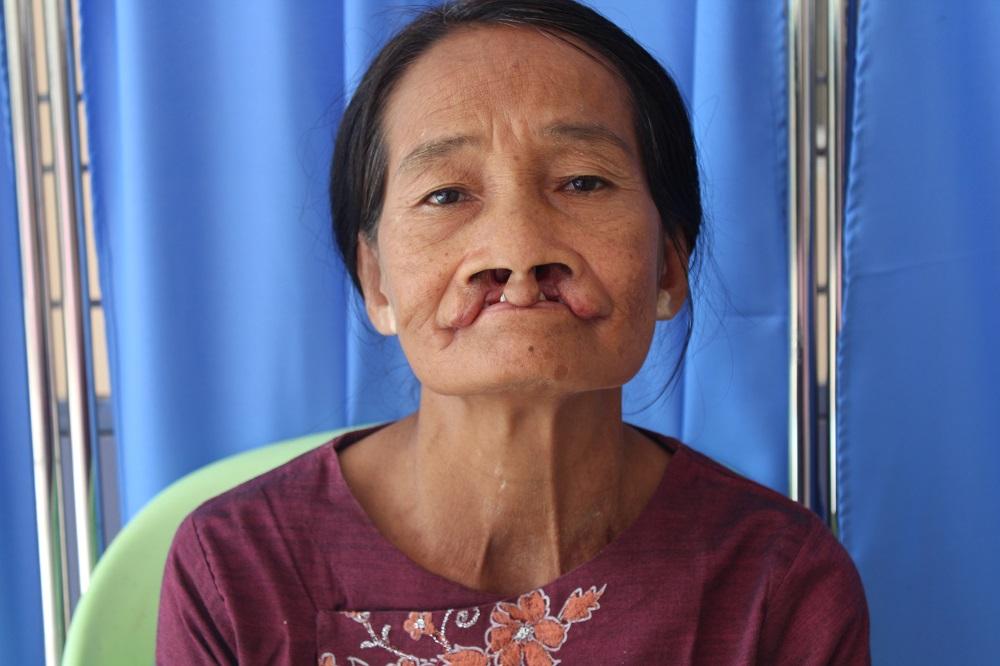 50 jarige vrouw voor dubbele cleftlip operatie