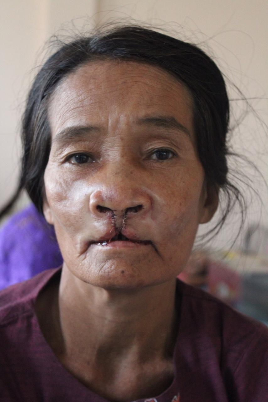 Dame van 50 na operatie