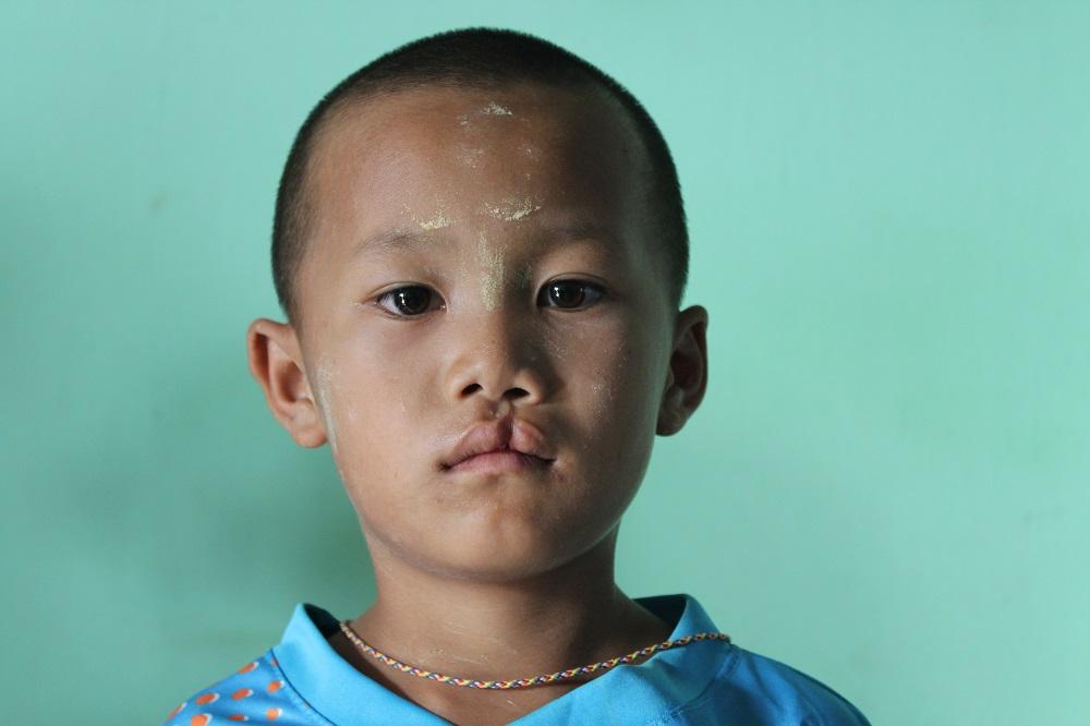 Daphne Velghe See & Smile Myanmar humanitair hazelip 14
