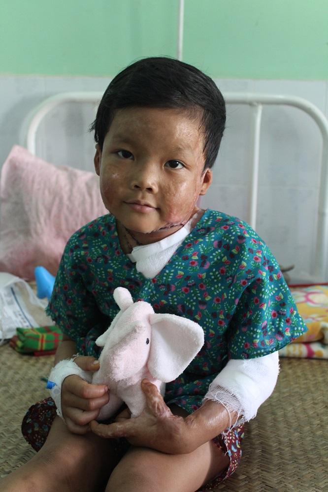Daphne-Velghe-See-Smile-Myanmar-humanitair-hazelip-4