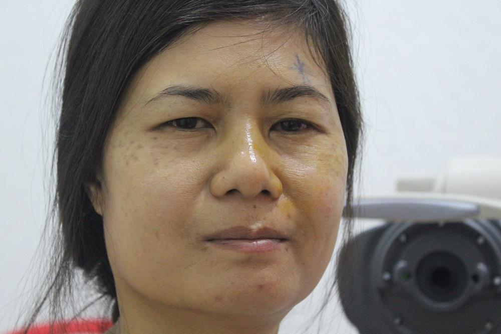 Vrouw na cataractbehandeling.