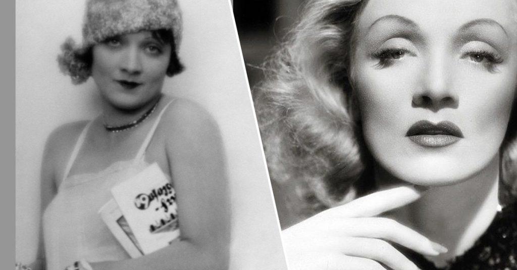 Met deze vier vreemde ingrepen veranderden old school Hollywoodsterren hun gezicht - 2
