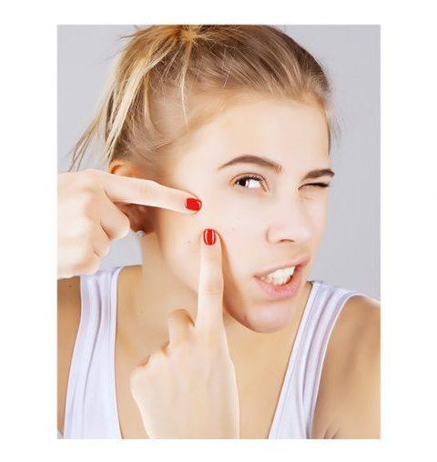 Zo maak je komaf met volwassenen acne