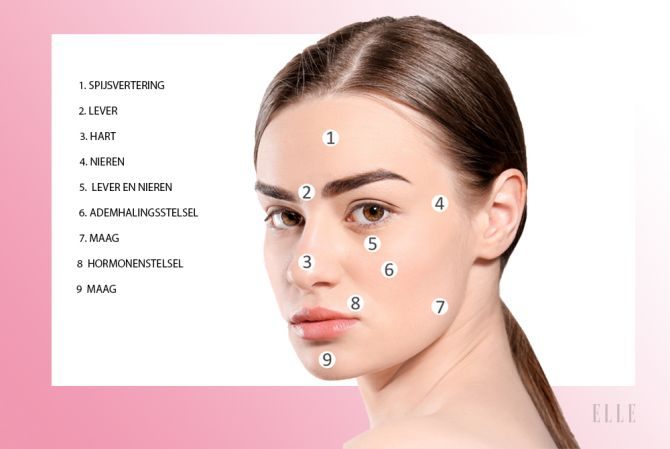 acne puistjes oorzaak face mapping