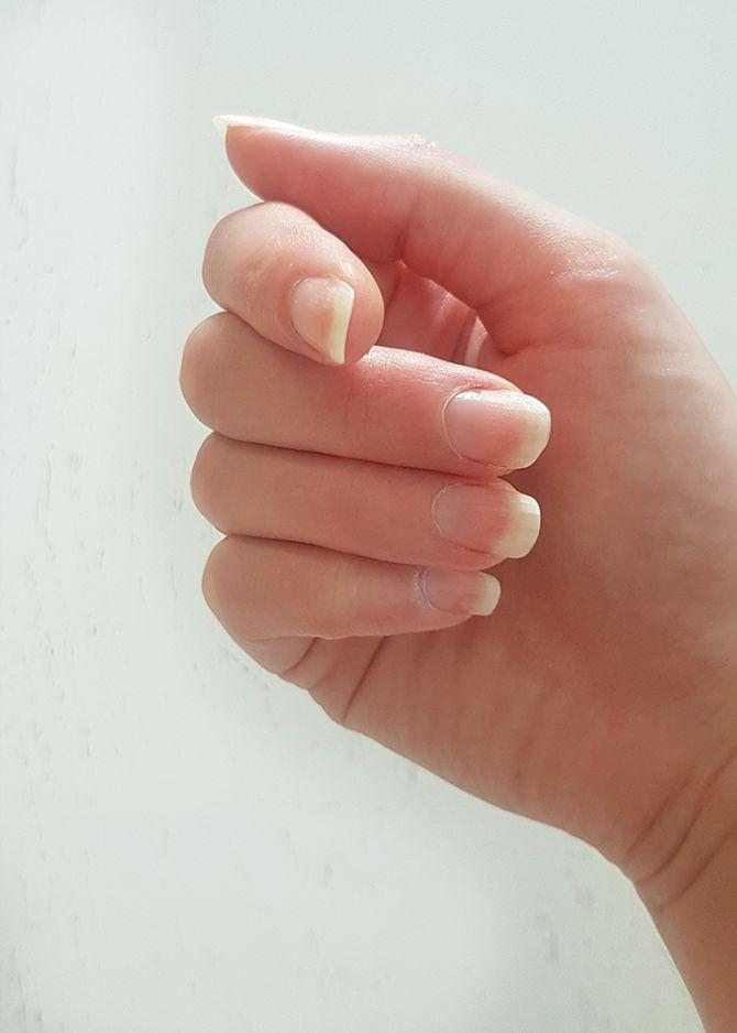 supplementen nagels haar